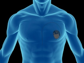 Implantable Electronics: A Futuristic in the Field of Medicine